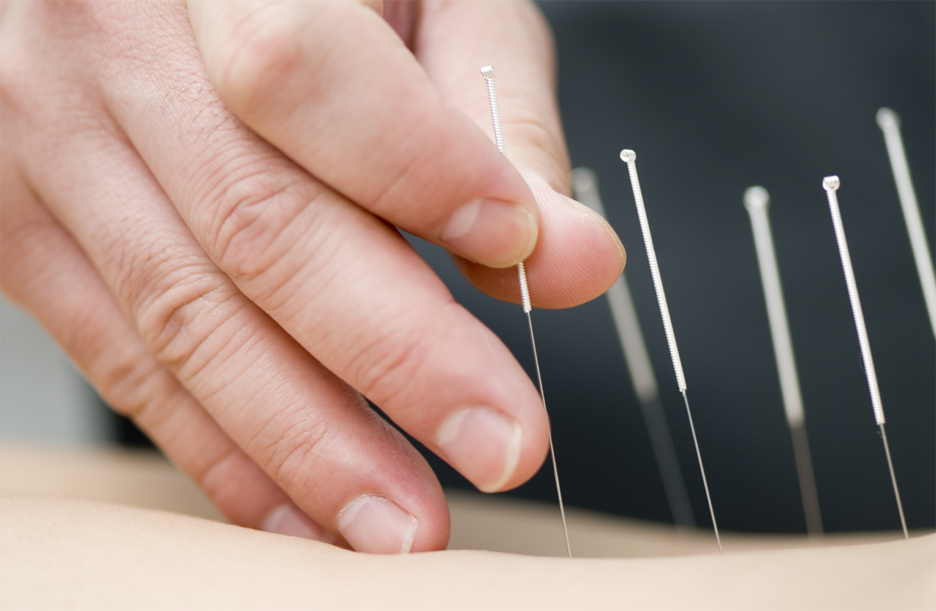 Centered Stillness Acupuncture and Massage Therapy, PLLC - Acupuncture